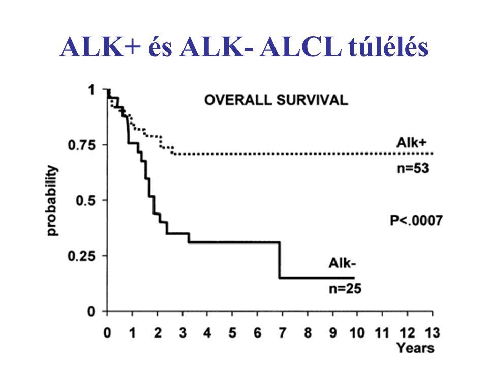 ALK+ és ALK- ALCL túlélés