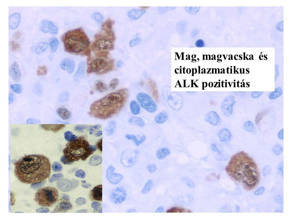 Mag, magvacska és citoplazmatikus ALK pozitivitás