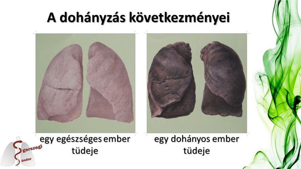 A dohányzás következményei egy egészséges ember tüdeje egy dohányos ember tüdeje