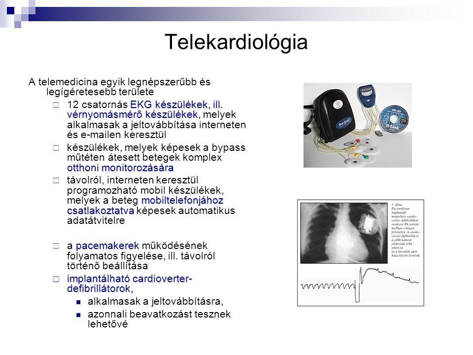 Telekardiológia A telemedicina egyik legnépszerűbb és legígéretesebb területe EKG készülékek, ill.
