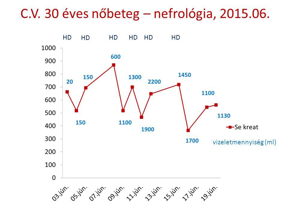 C.V. 30 éves nőbeteg – nefrológia, 2015.06. HD vizeletmennyiség (ml)