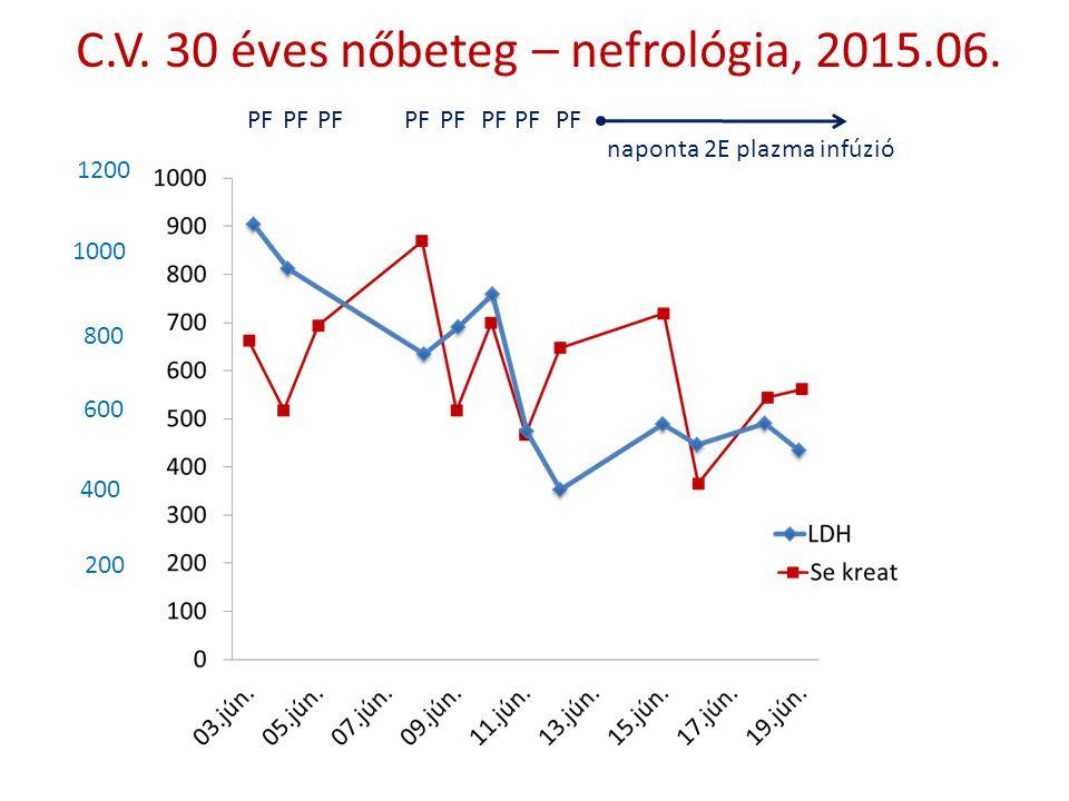 C.V. 30 éves nőbeteg – nefrológia, 2015.06. 1200 1000 800 600 400 200 PF naponta 2E plazma infúzió