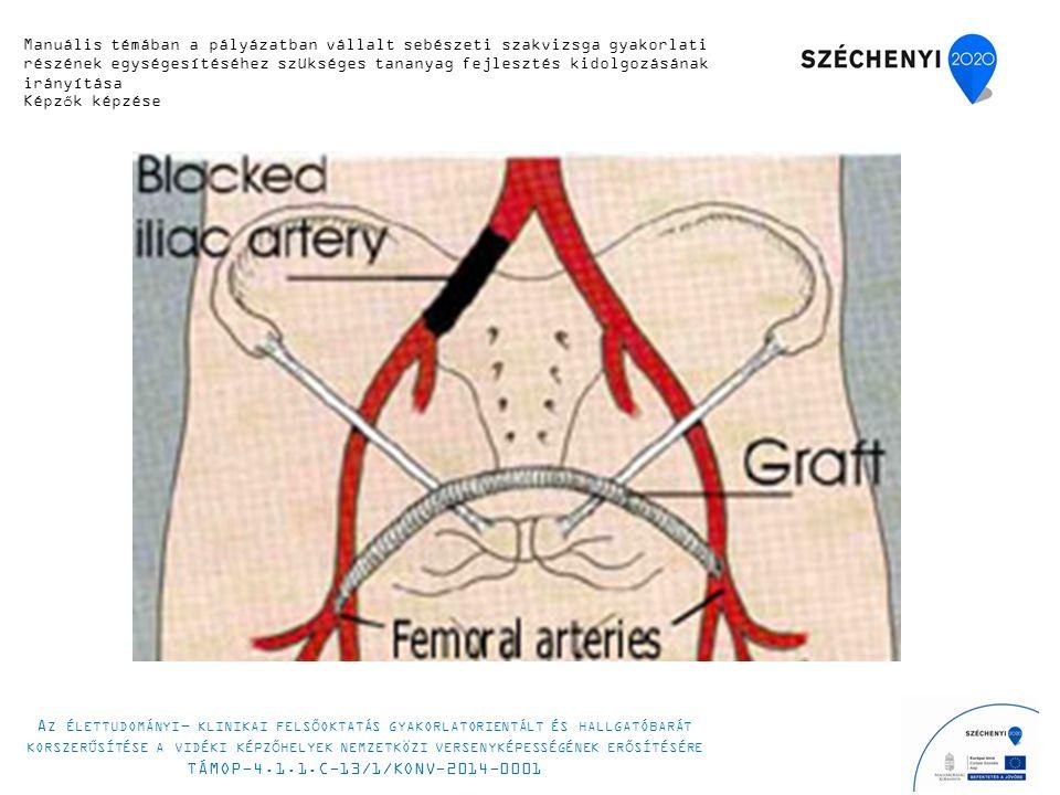Manuális témában a pályázatban vállalt sebészeti szakvizsga gyakorlati részének egységesítéséhez szükséges tananyag fejlesztés kidolgozásának irányítá