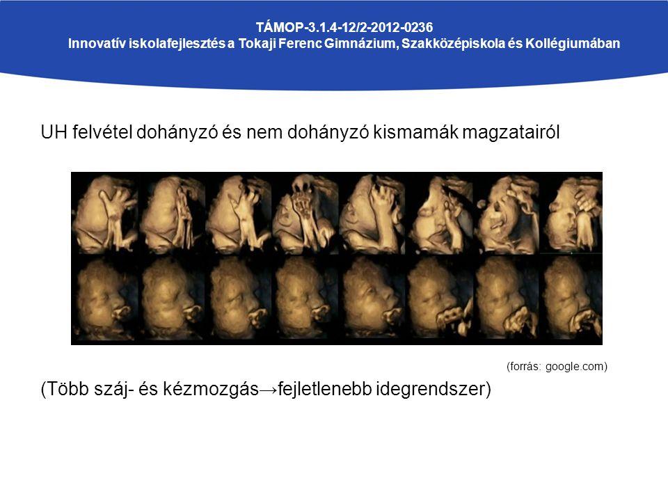 UH felvétel dohányzó és nem dohányzó kismamák magzatairól (forrás: google.com) (Több száj- és kézmozgás→fejletlenebb idegrendszer) TÁMOP-3.1.4-12/2-2012-0236 Innovatív iskolafejlesztés a Tokaji Ferenc Gimnázium, Szakközépiskola és Kollégiumában