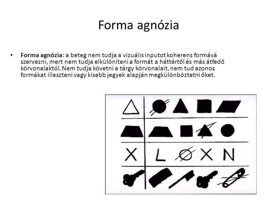 Forma agnózia Forma agnózia: a beteg nem tudja a vizuális inputot koherens formává szervezni, mert nem tudja elkülöníteni a formát a háttértől és más átfedő körvonalaktól.