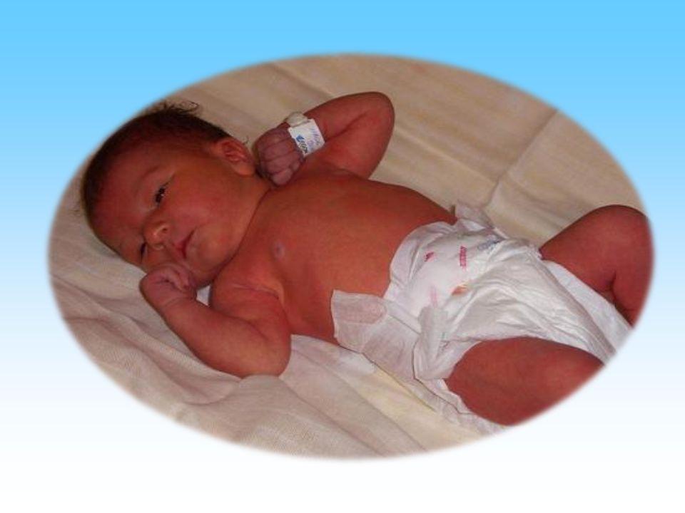 Az újszülöttek szokásos ellátása Keringés, légzés biztosítása - Keringés, légzés biztosítása - Megfelelő hőmérséklet - Apgar pontozás
