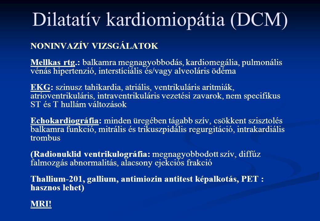 Dilatatív kardiomiopátia (DCM) NONINVAZÍV VIZSGÁLATOK Mellkas rtg.: balkamra megnagyobbodás, kardiomegália, pulmonális vénás hipertenzió, interstíciális és/vagy alveoláris ödéma EKG: szinusz tahikardia, atriális, ventrikuláris aritmiák, atrioventrikuláris, intraventrikuláris vezetési zavarok, nem specifikus ST és T hullám változások Echokardiográfia: minden üregében tágabb szív, csökkent szisztolés balkamra funkció, mitrális és trikuszpidális regurgitáció, intrakardiális trombus (Radionuklid ventrikulográfia: megnagyobbodott szív, diffúz falmozgás abnormalitás, alacsony ejekciós frakció Thallium-201, gallium, antimiozin antitest képalkotás, PET : hasznos lehet) MRI!