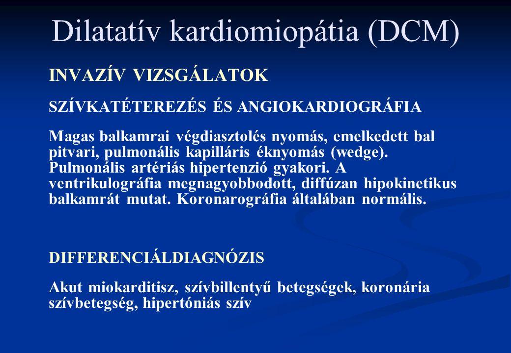 Dilatatív kardiomiopátia (DCM) INVAZÍV VIZSGÁLATOK SZÍVKATÉTEREZÉS ÉS ANGIOKARDIOGRÁFIA Magas balkamrai végdiasztolés nyomás, emelkedett bal pitvari, pulmonális kapilláris éknyomás (wedge).