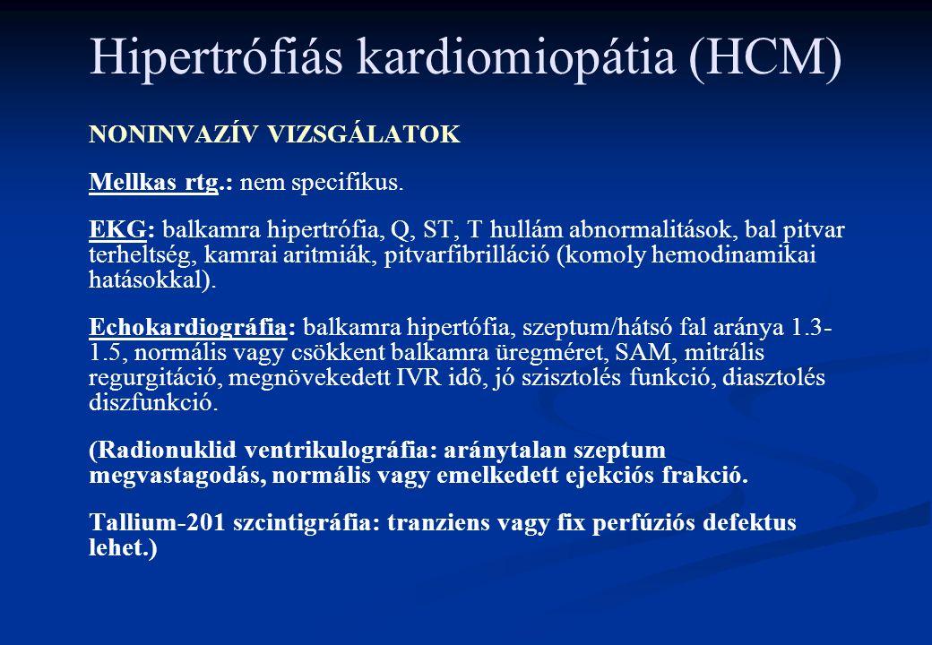 Hipertrófiás kardiomiopátia (HCM) NONINVAZÍV VIZSGÁLATOK Mellkas rtg.: nem specifikus. EKG: balkamra hipertrófia, Q, ST, T hullám abnormalitások, bal
