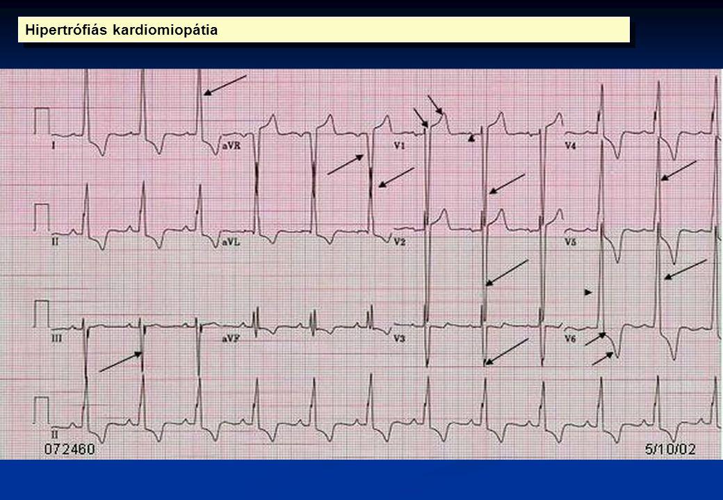 Hipertrófiás kardiomiopátia