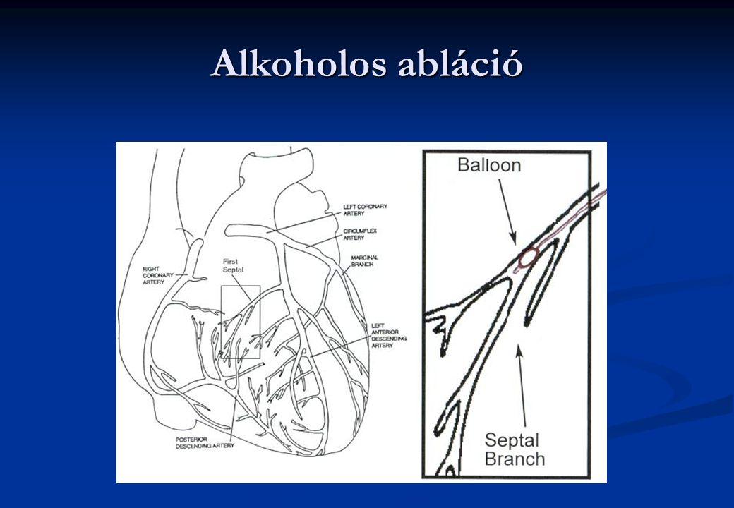Alkoholos abláció