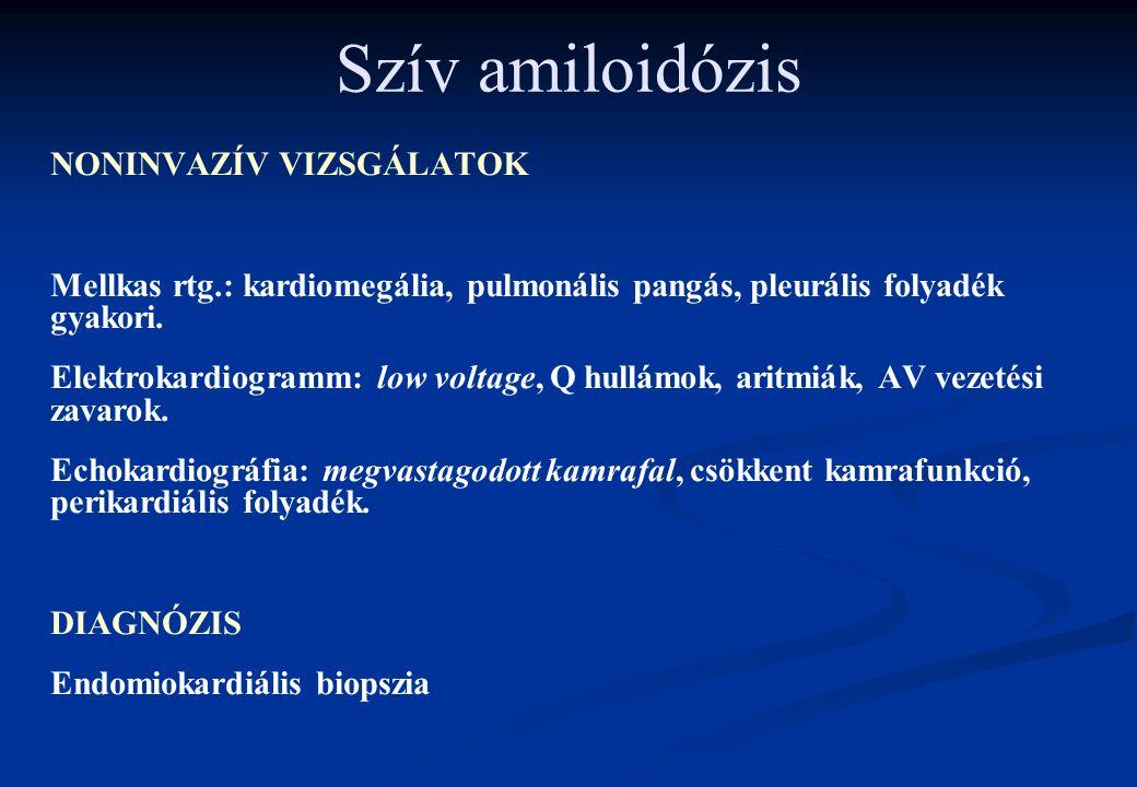 Szív amiloidózis NONINVAZÍV VIZSGÁLATOK Mellkas rtg.: kardiomegália, pulmonális pangás, pleurális folyadék gyakori. Elektrokardiogramm: low voltage, Q