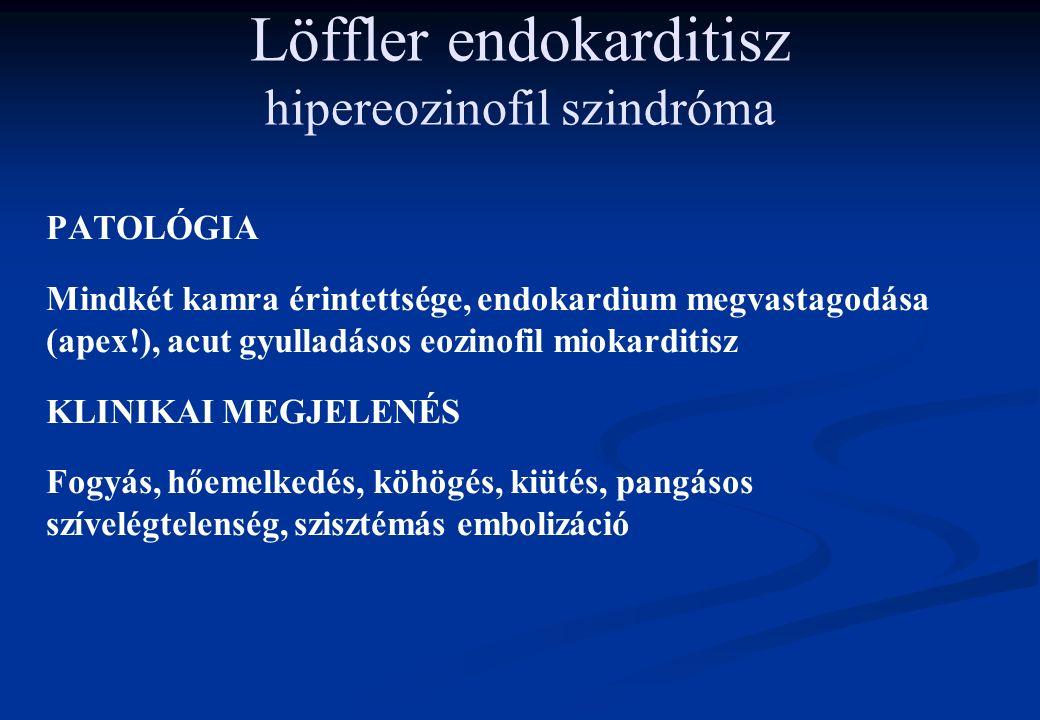 Löffler endokarditisz hipereozinofil szindróma PATOLÓGIA Mindkét kamra érintettsége, endokardium megvastagodása (apex!), acut gyulladásos eozinofil miokarditisz KLINIKAI MEGJELENÉS Fogyás, hőemelkedés, köhögés, kiütés, pangásos szívelégtelenség, szisztémás embolizáció