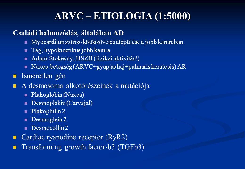 ARVC – ETIOLOGIA (1:5000) Családi halmozódás, általában AD Myocardium zsíros-kötőszövetes átépülése a jobb kamrában Tág, hypokinetikus jobb kamra Adam-Stokes sy, HSZH (fizikai aktivitás!) Naxos-betegség (ARVC+gyapjas haj+palmaris keratosis) AR Ismeretlen gén A desmosoma alkotórészeinek a mutációja Plakoglobin (Naxos) Desmoplakin (Carvajal) Plakophilin 2 Desmoglein 2 Desmocollin 2 Cardiac ryanodine receptor (RyR2) Transforming growth factor-b3 (TGFb3)