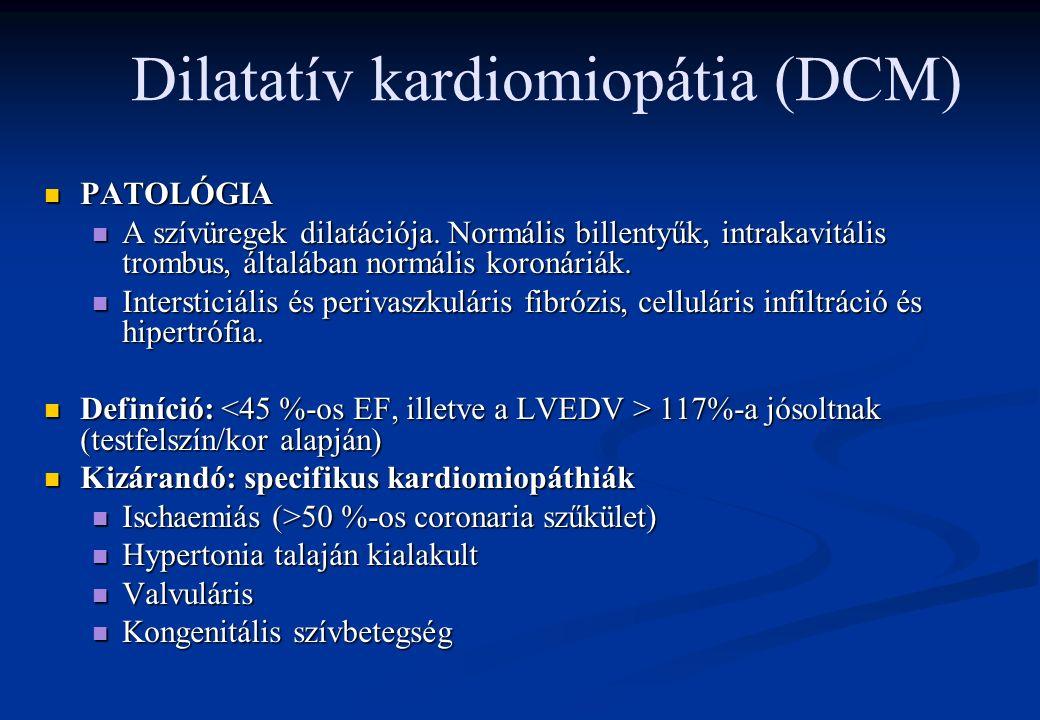 Myocarditis diagnosztikája: Myocarditis diagnosztikája: Fizikális vizsgálat Fizikális vizsgálat EKG: EKG: AV blokk megjelenése AV blokk megjelenése Egyéb ingerületvezetési zavar Egyéb ingerületvezetési zavar ST-elevatio, T hullám inversio ST-elevatio, T hullám inversio Kamrai ritmuszavarok (nsVT) megjelenése Kamrai ritmuszavarok (nsVT) megjelenése Q hullámok kialakulása (ritka) Q hullámok kialakulása (ritka) Echocardiographia: Echocardiographia: Systoles balkamrai dysfunctio Systoles balkamrai dysfunctio Balkamrai dilatatio Balkamrai dilatatio Laboratóriumi vizsgálatok: Laboratóriumi vizsgálatok: Enyhe necroenzim emelkedés Enyhe necroenzim emelkedés Egyéb gyulladásos paraméterek emelkedése is lehet (nem obligát) Egyéb gyulladásos paraméterek emelkedése is lehet (nem obligát) Endomyocardialis biopszia - diagnosztikus Endomyocardialis biopszia - diagnosztikus Vírusparticulumok Vírusparticulumok IC depositumok IC depositumok Myocardium infiltratioja (lymphocytás: vírus myocarditis) Myocardium infiltratioja (lymphocytás: vírus myocarditis) Therápia: Therápia: Specifikus th.