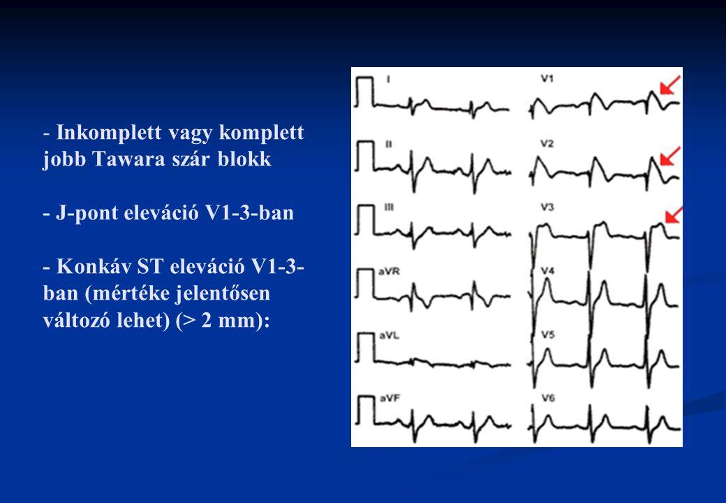 - - Inkomplett vagy komplett jobb Tawara szár blokk - J-pont eleváció V1-3-ban - Konkáv ST eleváció V1-3- ban (mértéke jelentősen változó lehet) (> 2 mm):