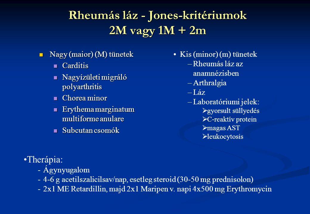 Rheumás láz - Jones-kritériumok 2M vagy 1M + 2m Nagy (maior) (M) tünetek Nagy (maior) (M) tünetek Carditis Carditis Nagyízületi migráló polyarthritis