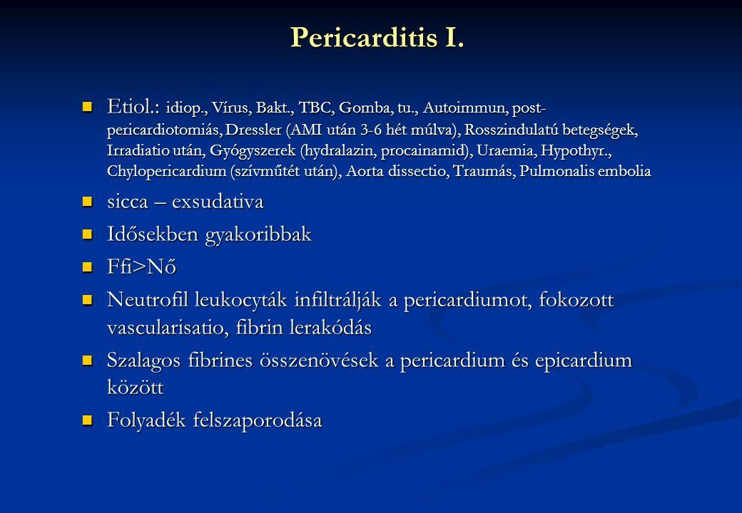 Pericarditis I. Etiol.: idiop., Vírus, Bakt., TBC, Gomba, tu., Autoimmun, post- pericardiotomiás, Dressler (AMI után 3-6 hét múlva), Rosszindulatú bet