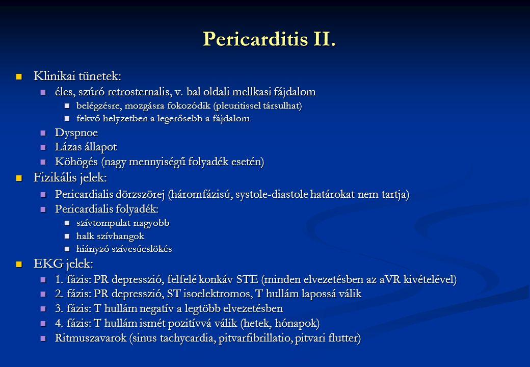 Pericarditis II. Klinikai tünetek: Klinikai tünetek: éles, szúró retrosternalis, v. bal oldali mellkasi fájdalom éles, szúró retrosternalis, v. bal ol