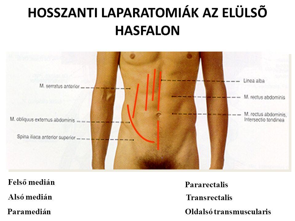 HOSSZANTI LAPARATOMIÁK AZ ELÜLSÕ HASFALON Felső medián Alsó medián Paramedián Pararectalis Transrectalis Oldalsó transmuscularis