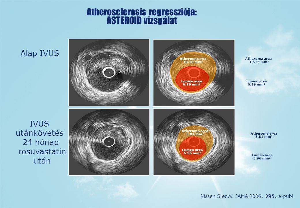 Atherosclerosis regressziója: ASTEROID vizsgálat Alap IVUS IVUS utánkövetés 24 hónap rosuvastatin után Atheroma area 10.16 mm 2 Lumen area 6.19 mm 2 Atheroma area 5.81 mm 2 Lumen area 5.96 mm 2 Nissen S et al.