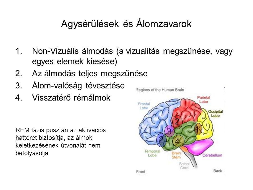 Agysérülések és Álomzavarok 1.Non-Vizuális álmodás (a vizualitás megszűnése, vagy egyes elemek kiesése) 2.Az álmodás teljes megszűnése 3.Álom-valóság