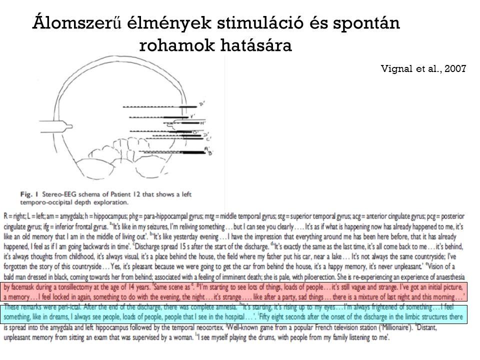 Álomszer ű élmények stimuláció és spontán rohamok hatására Vignal et al., 2007