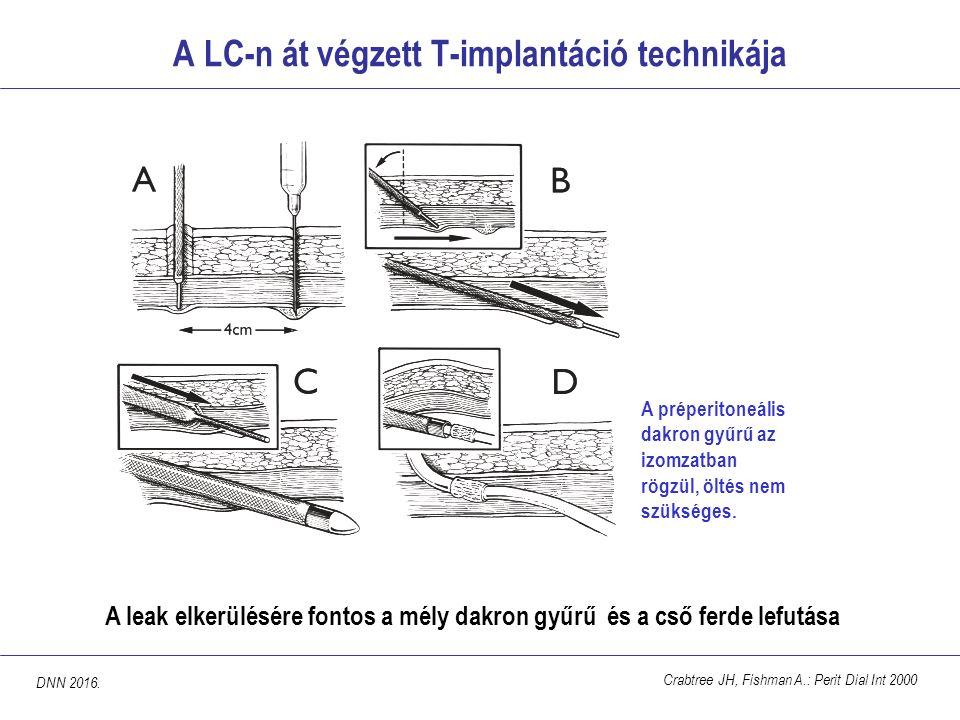 A LC-n át végzett T-implantáció technikája Crabtree JH, Fishman A.: Perit Dial Int 2000 A leak elkerülésére fontos a mély dakron gyűrű és a cső ferde