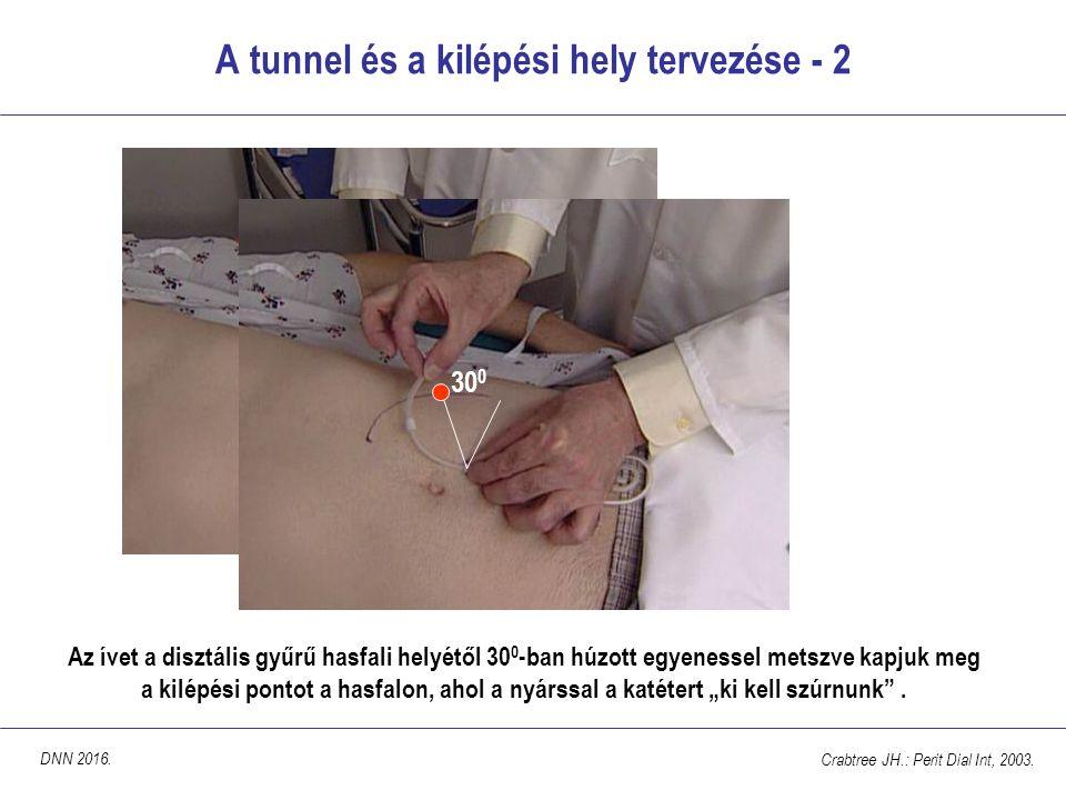 """A tunnel és a kilépési hely tervezése - 2 Az ívet a disztális gyűrű hasfali helyétől 30 0 -ban húzott egyenessel metszve kapjuk meg a kilépési pontot a hasfalon, ahol a nyárssal a katétert """"ki kell szúrnunk ."""