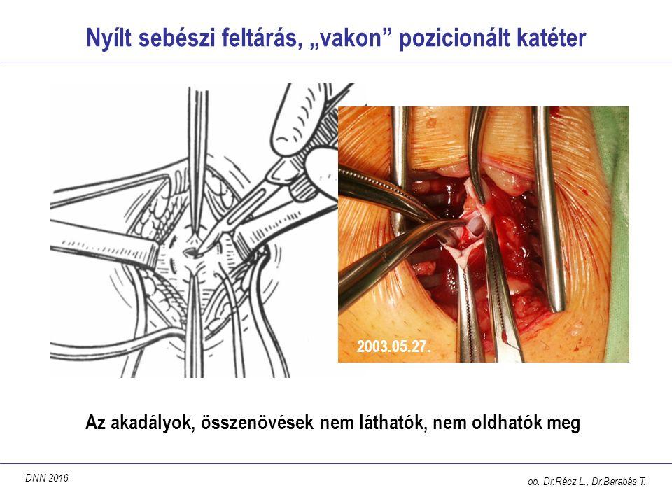 """Nyílt sebészi feltárás, """"vakon"""" pozicionált katéter Az akadályok, összenövések nem láthatók, nem oldhatók meg op. Dr.Rácz L., Dr.Barabás T. 2003.05.27"""