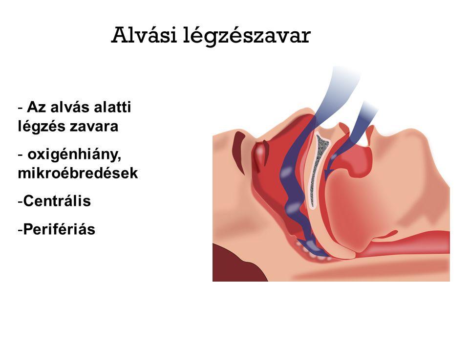 Alvási légzészavar - Az alvás alatti légzés zavara - oxigénhiány, mikroébredések -Centrális -Perifériás