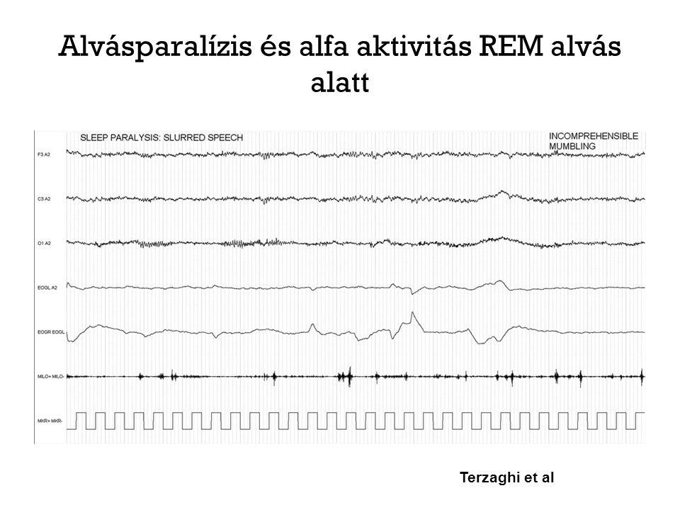 """REM magatartászavar Narkolepszia """"ellentéte REM fázis alatti mozgásos agitáció Sérül a motoros idegsejtek REM alatti gátlása, és így a személy akár valósággal el is játszhatja az álmát Változó súlyosság: enyhe mocorgástól, hangadástól az álomélmény teljes előadásáig (pl."""