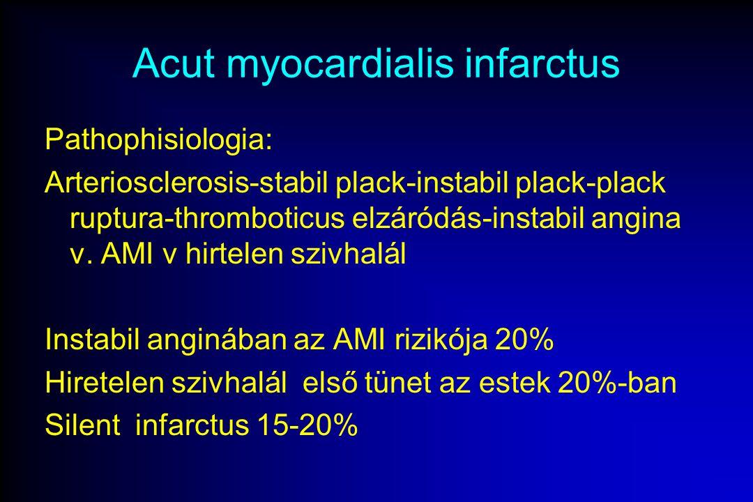 Acut myocardialis infarctus Pathophisiologia: Arteriosclerosis-stabil plack-instabil plack-plack ruptura-thromboticus elzáródás-instabil angina v.