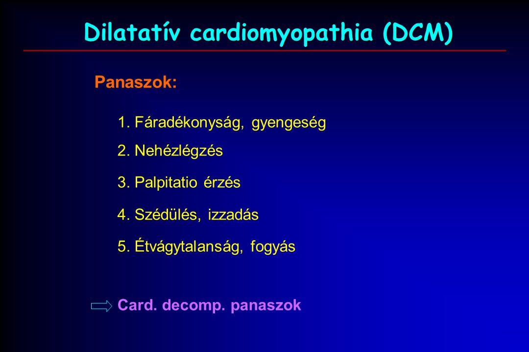 Dilatatív cardiomyopathia (DCM) Panaszok: 1. Fáradékonyság, gyengeség 2.
