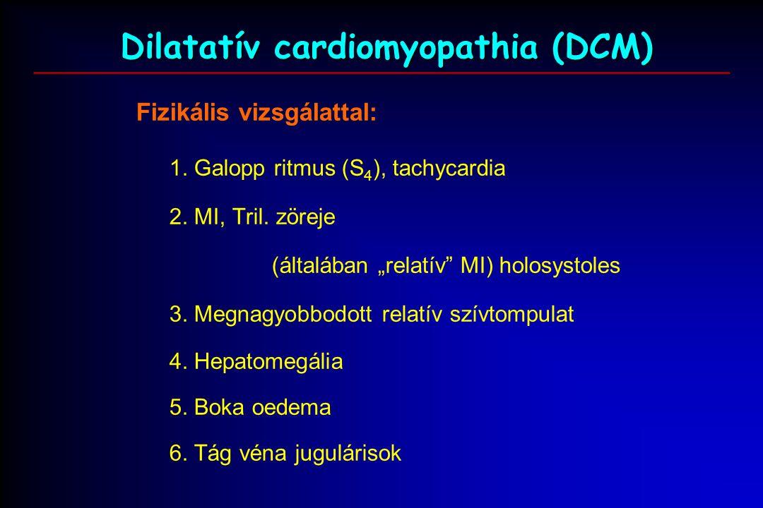 Dilatatív cardiomyopathia (DCM) Fizikális vizsgálattal: 1.