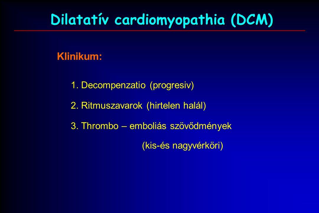 Klinikum: 1. Decompenzatio (progresiv) 2. Ritmuszavarok (hirtelen halál) 3.