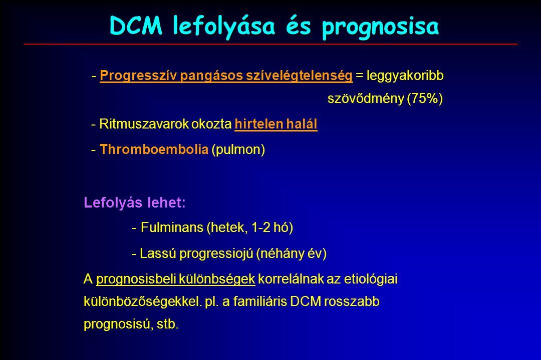 DCM lefolyása és prognosisa - Progresszív pangásos szívelégtelenség = leggyakoribb szövődmény (75%) - Ritmuszavarok okozta hirtelen halál - Thromboembolia (pulmon) Lefolyás lehet: - Fulminans (hetek, 1-2 hó) - Lassú progressiojú (néhány év) A prognosisbeli különbségek korrelálnak az etiológiai különbözőségekkel.