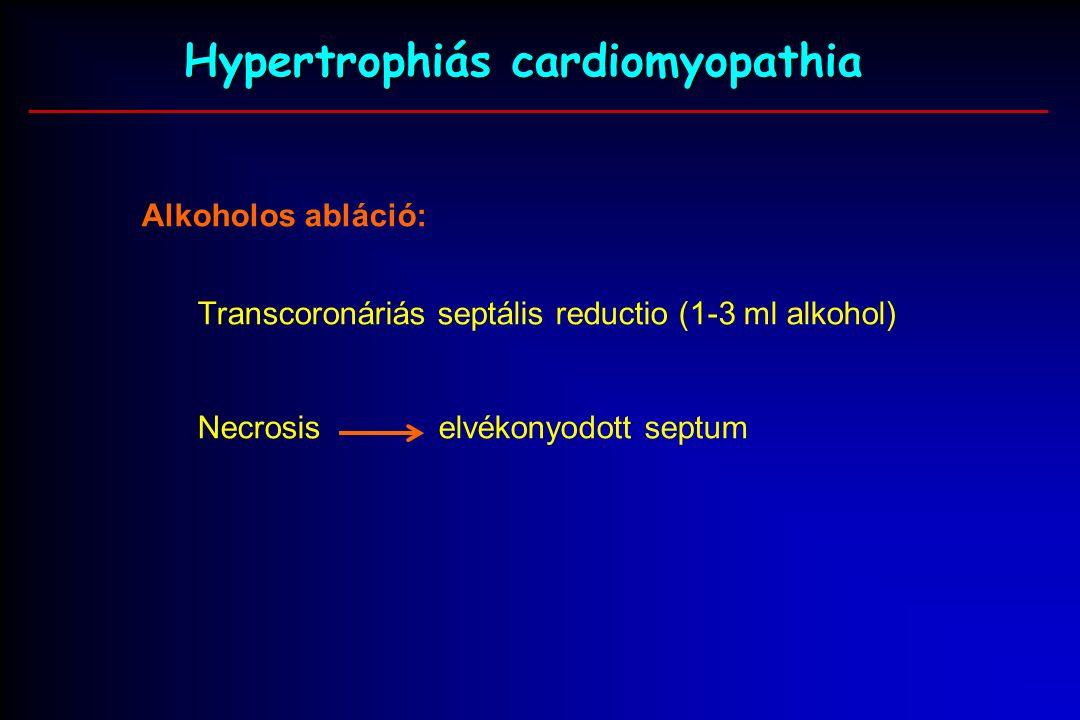 Hypertrophiás cardiomyopathia Alkoholos abláció: Transcoronáriás septális reductio (1-3 ml alkohol) Necrosis elvékonyodott septum
