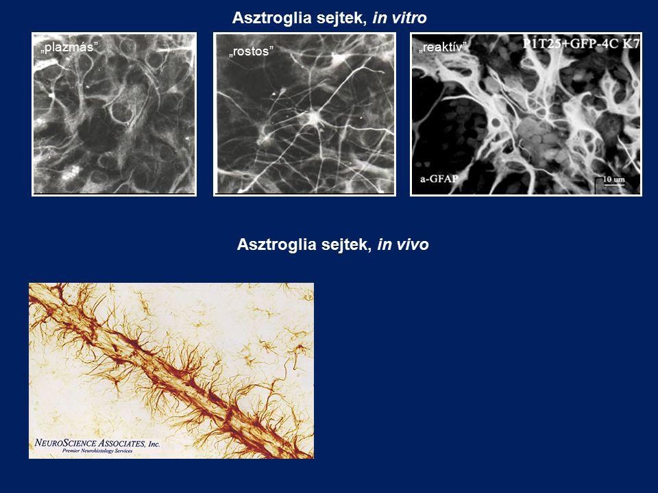 """""""plazmás"""" """"rostos"""" """"reaktív"""" Asztroglia sejtek, in vitro Asztroglia sejtek, in vivo"""