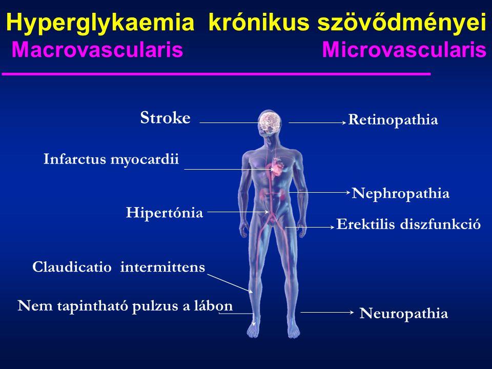 Hyperglykaemia krónikus szövődményei Macrovascularis Microvascularis Hipertónia Stroke Infarctus myocardii Nem tapintható pulzus a lábon Claudicatio intermittens Retinopathia Nephropathia Erektilis diszfunkció Neuropathia
