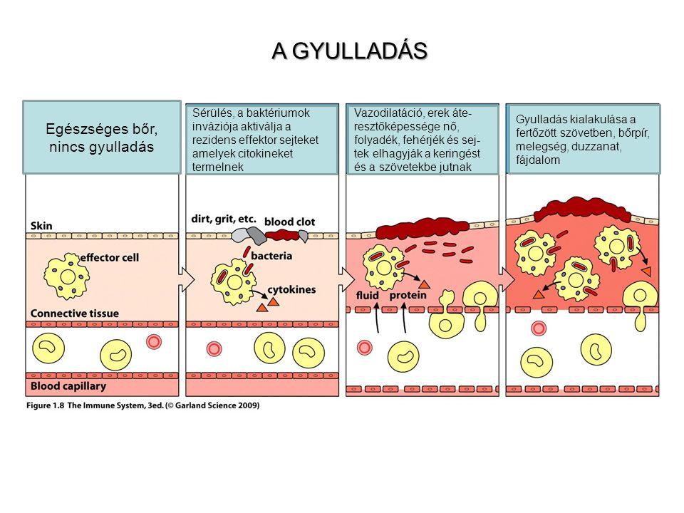 A GYULLADÁS Egészséges bőr, nincs gyulladás Sérülés, a baktériumok inváziója aktiválja a rezidens effektor sejteket amelyek citokineket termelnek Vazodilatáció, erek áte- resztőképessége nő, folyadék, fehérjék és sej- tek elhagyják a keringést és a szövetekbe jutnak Gyulladás kialakulása a fertőzött szövetben, bőrpír, melegség, duzzanat, fájdalom