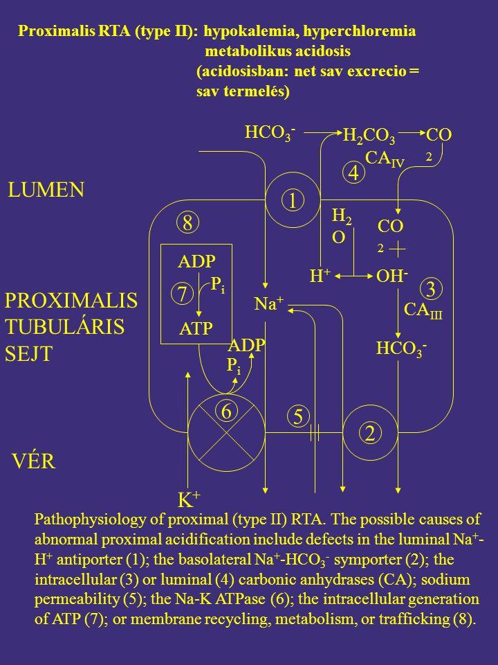 Proximalis RTA (type II): hypokalemia, hyperchloremia metabolikus acidosis (acidosisban: net sav excrecio = sav termelés) 2 8 6 K+K+ Na + HCO 3 - H 2 CO 3 CO 2 HCO 3 - H2OH2O CA IV H+H+ CO 2 OH - CA III 3 4 1 5 ADP 7 PiPi ATP ADP PiPi Pathophysiology of proximal (type II) RTA.