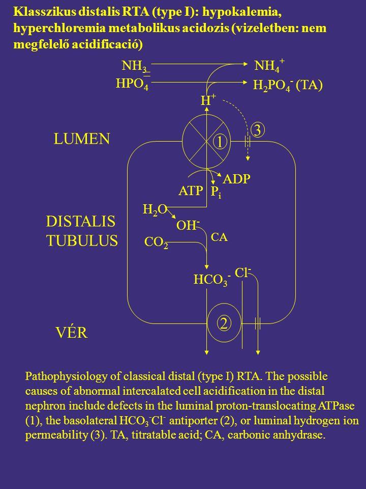 Klasszikus distalis RTA (type I): hypokalemia, hyperchloremia metabolikus acidozis (vizeletben: nem megfelelő acidificació) Pathophysiology of classical distal (type I) RTA.