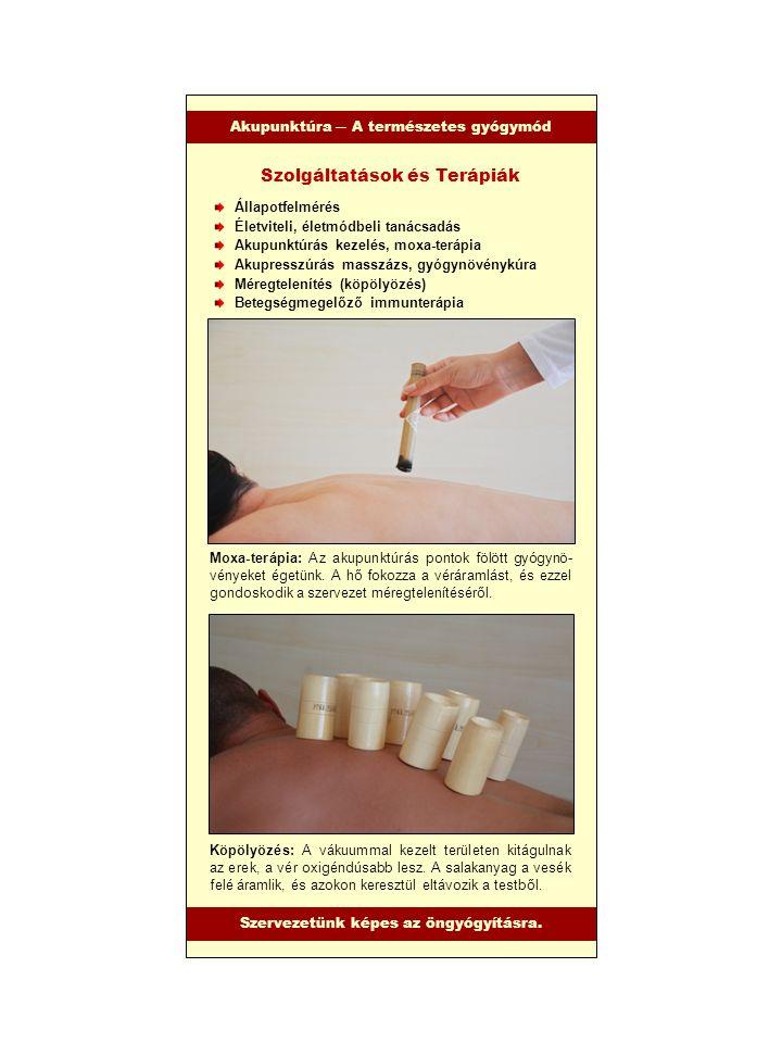 Akupunktúra – A természetes gyógymód Akupunktúra ― A természetes gyógymód Állapotfelmérés Életviteli, életmódbeli tanácsadás Akupunktúrás kezelés, mox