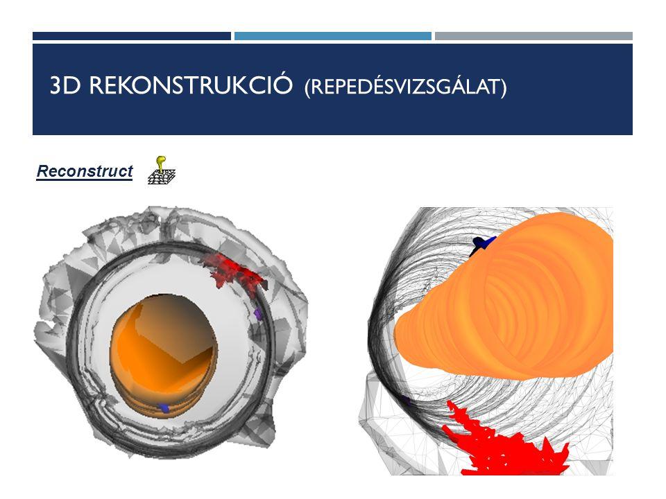 3D REKONSTRUKCIÓ (REPEDÉSVIZSGÁLAT) Reconstruct