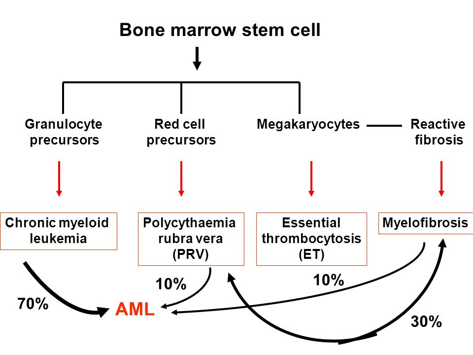 Bone marrow stem cell Clonal abnormality Granulocyte precursors Red cell precursors MegakaryocytesReactive fibrosis Essential thrombocytosis (ET) Polycythaemia rubra vera (PRV) Myelofibrosis AML Chronic myeloid leukemia 70% 10% 30%