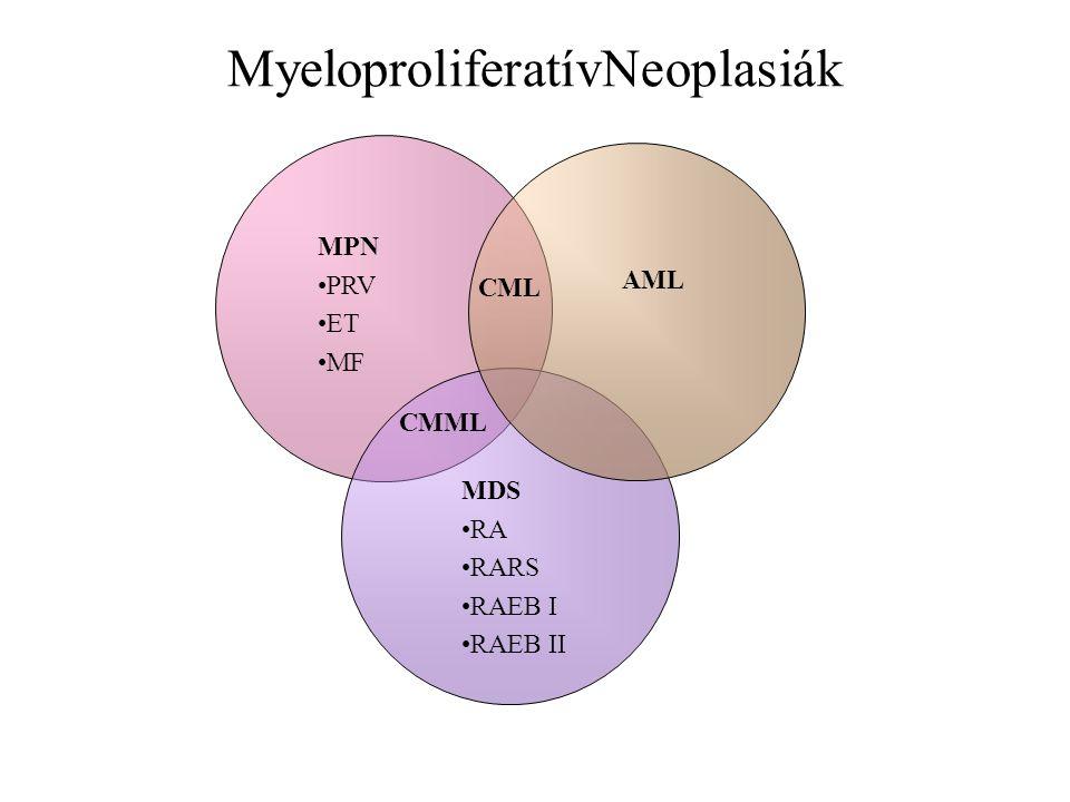 MyeloproliferatívNeoplasiák MPN PRV ET MF AML MDS RA RARS RAEB I RAEB II CMML CML