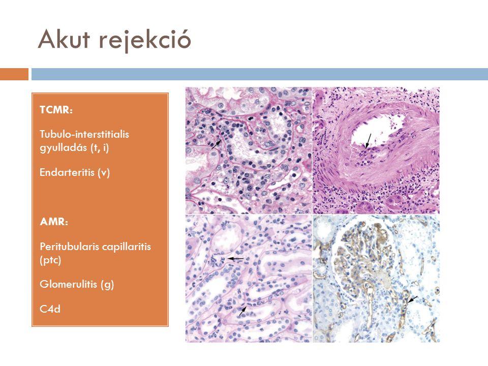 Akut rejekció TCMR: Tubulo-interstitialis gyulladás (t, i) Endarteritis (v) AMR: Peritubularis capillaritis (ptc) Glomerulitis (g) C4d