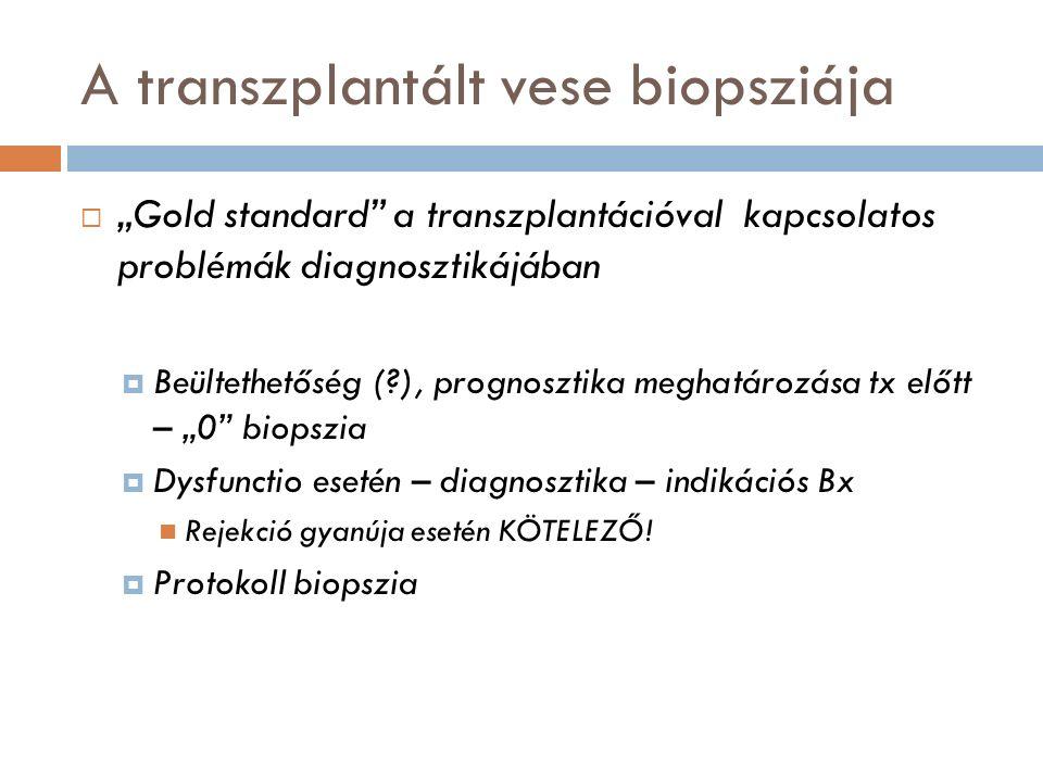"""A transzplantált vese biopsziája  """"Gold standard a transzplantációval kapcsolatos problémák diagnosztikájában  Beültethetőség (?), prognosztika meghatározása tx előtt – """"0 biopszia  Dysfunctio esetén – diagnosztika – indikációs Bx Rejekció gyanúja esetén KÖTELEZŐ."""