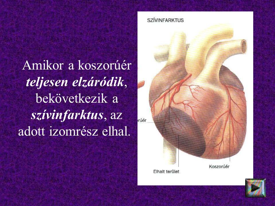 Amikor a koszorúér teljesen elzáródik, bekövetkezik a szívinfarktus, az adott izomrész elhal.